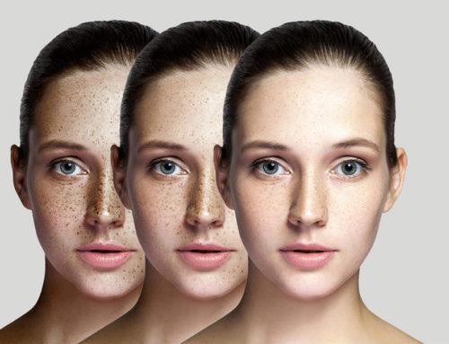 Lumecca – Superior Skincare with Amazing Results